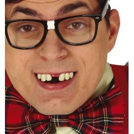 Dents Ecartées avec Thermoplastique