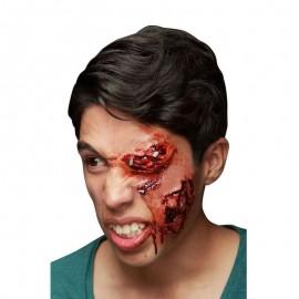Cicatrices Infectées en Latex
